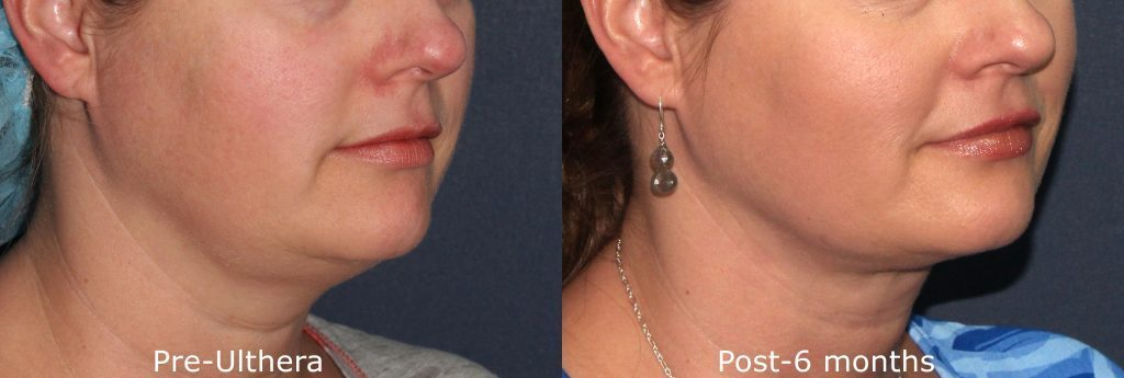 Actual unretouched patient before and after Ultherapy to tighten skin under the chin by Dr. Fabi. Disclaimer: Results may vary from patient to patient. Results are not guaranteed.