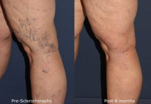 Before and after side image of sclerotherapy treatment on a female's leg veins performed by Dr. Wu at our San Diego medical spa