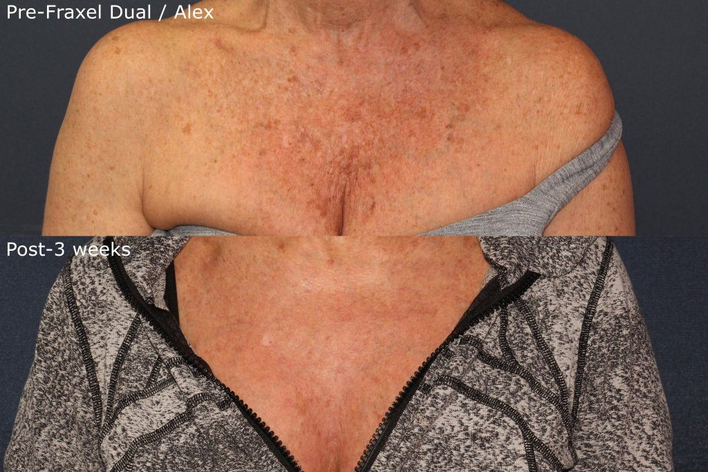 Actual unretouched patient before and after Fraxel Dual and Alexandrite laser for chest rejuvenation by Dr. Groff. Disclaimer: Results may vary from patient to patient. Results are not guaranteed.