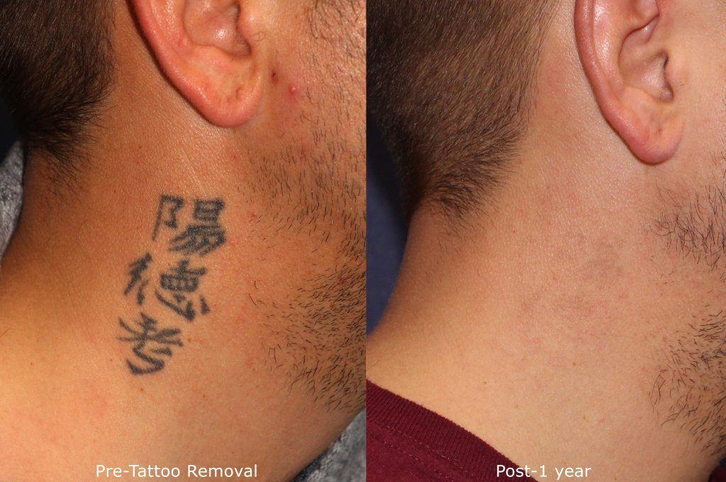 Tattoo Laser Removal With Picoway Laser By San Diego Dermatologists