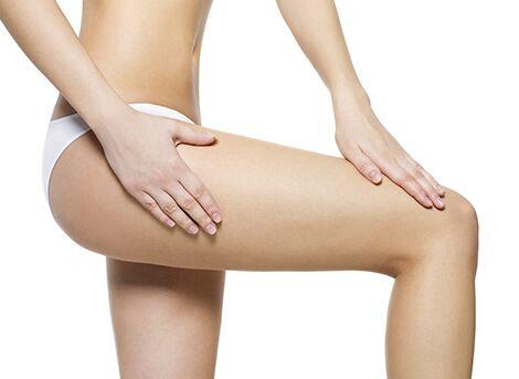 Leg Fat Reduction Procedure San Diego