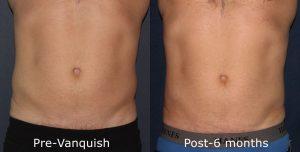 Vanquish Reduction Stomach La Jolla