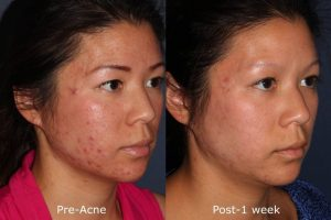 San diego Aesthetic Facial Acne Peel Sensitive Skin