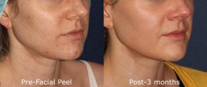 Acne Reduction Peel San Diego