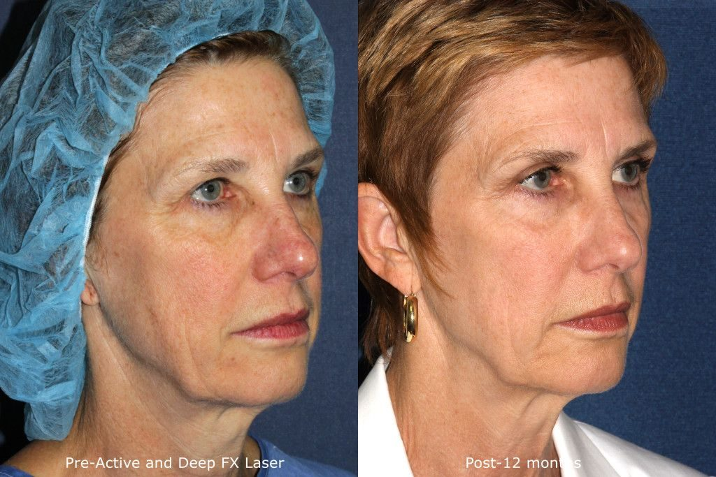 Actual unretouched patient before and after Active/DeepFX to rejuvenate the skin by Dr. Goldman. Disclaimer: Results may vary from patient to patient. Results are not guaranteed.