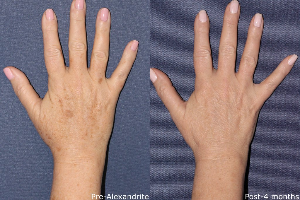 Unretouched photos of patient before and after Alexandrite laser treatment for hand rejuvenation by Dr. Fabi. Disclaimer: Results may vary from patient to patient. Results are not guaranteed.