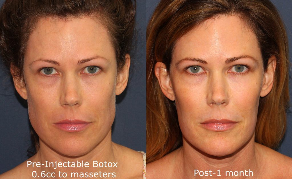 Actual un-retouched patient before and after Botox treatment for masseter reduction by Dr. Groff. Disclaimer: Results may vary from patient to patient. Results are not guaranteed.
