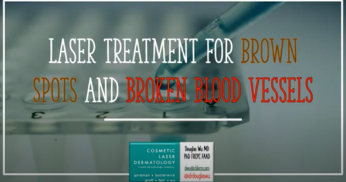 laser dermatology treatment for brown spots and broken blood vessels in san diego, ca