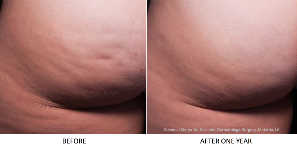Actual un-retouched patient before and after Cellfina to reduce cellulite on the buttocks by Dr. Fabi. Disclaimer: Results may vary from patient to patient. Results are not guaranteed.