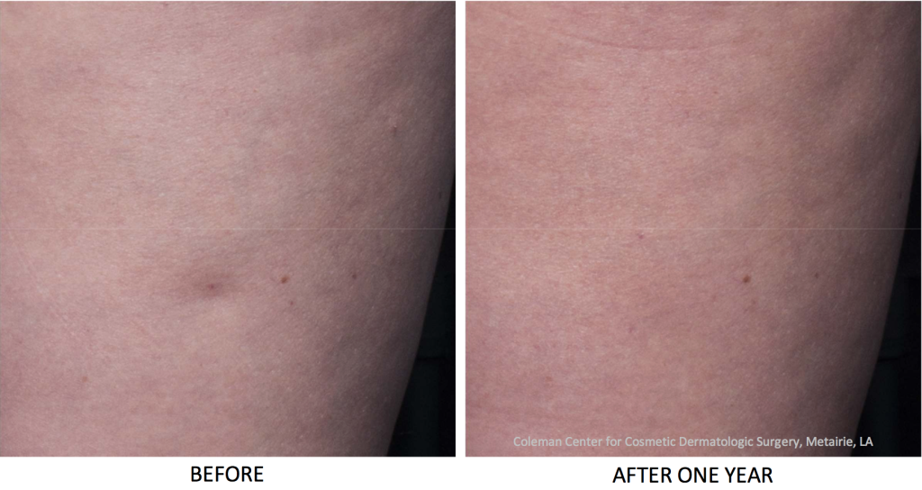 Actual un-retouched patient before and after Cellfina to reduce cellulite by Dr. Fabi. Disclaimer: Results may vary from patient to patient. Results are not guaranteed.