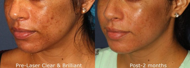 Actual un-retouched patient before and after Clear + Brilliant laser treatment for sun damage and brown spots by Dr. Wu. Disclaimer: Results may vary from patient to patient. Results are not guaranteed.
