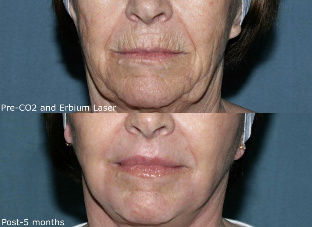 Actual un-retouched patient before and after Co2 and Erbium laser treatment to address deep wrinkles by Dr. Groff. Disclaimer: Results may vary from patient to patient. Results are not guaranteed.