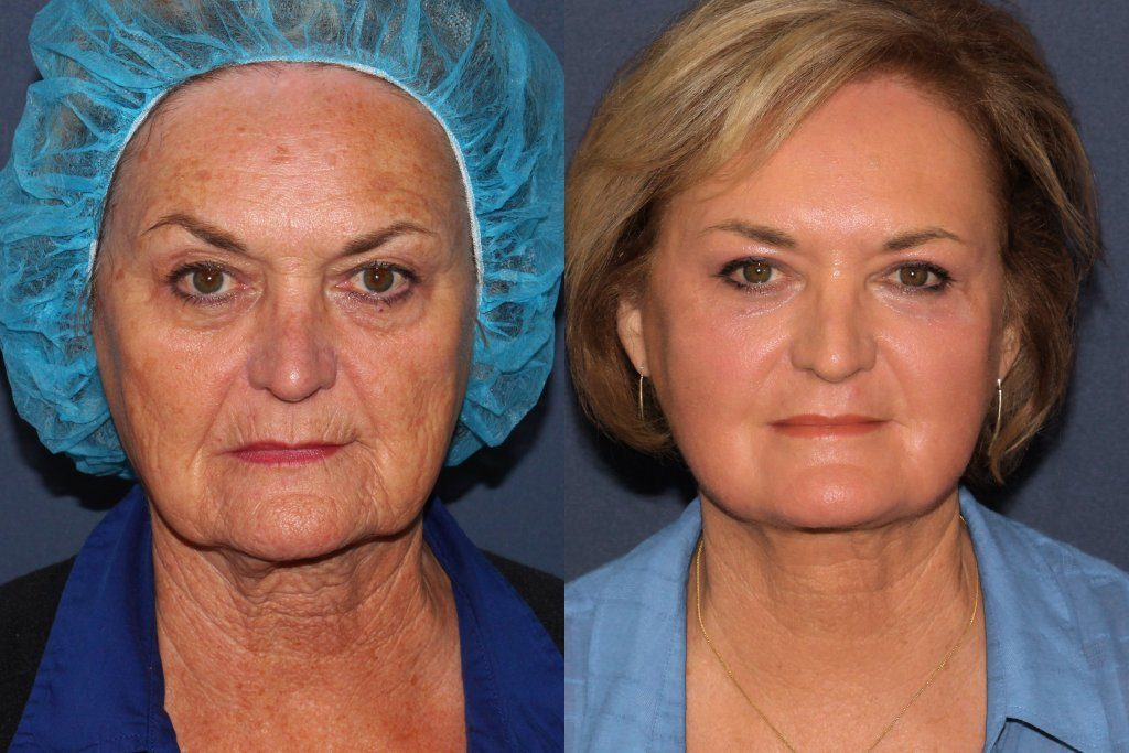 Actual un-retouched patient before and after Co2 and Erbium laser treatment for facial rejuvenation by Dr. Groff. Disclaimer: Results may vary from patient to patient. Results are not guaranteed.