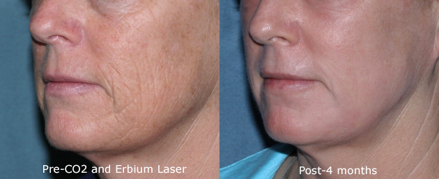 Actual un-retouched patient before and after CO2 and Erbium laser treatment for deep wrinkles by Dr. Groff. Disclaimer: Results may vary from patient to patient. Results are not guaranteed.