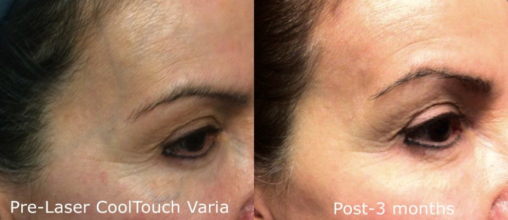 Actual un-retouched patient before and after CoolTouch Varia laser to remove facial veins by Dr. Groff. Disclaimer: Results may vary from patient to patient. Results are not guaranteed.