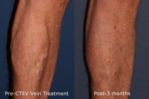 Cooltouch CTEV Vein Treatment San Diego