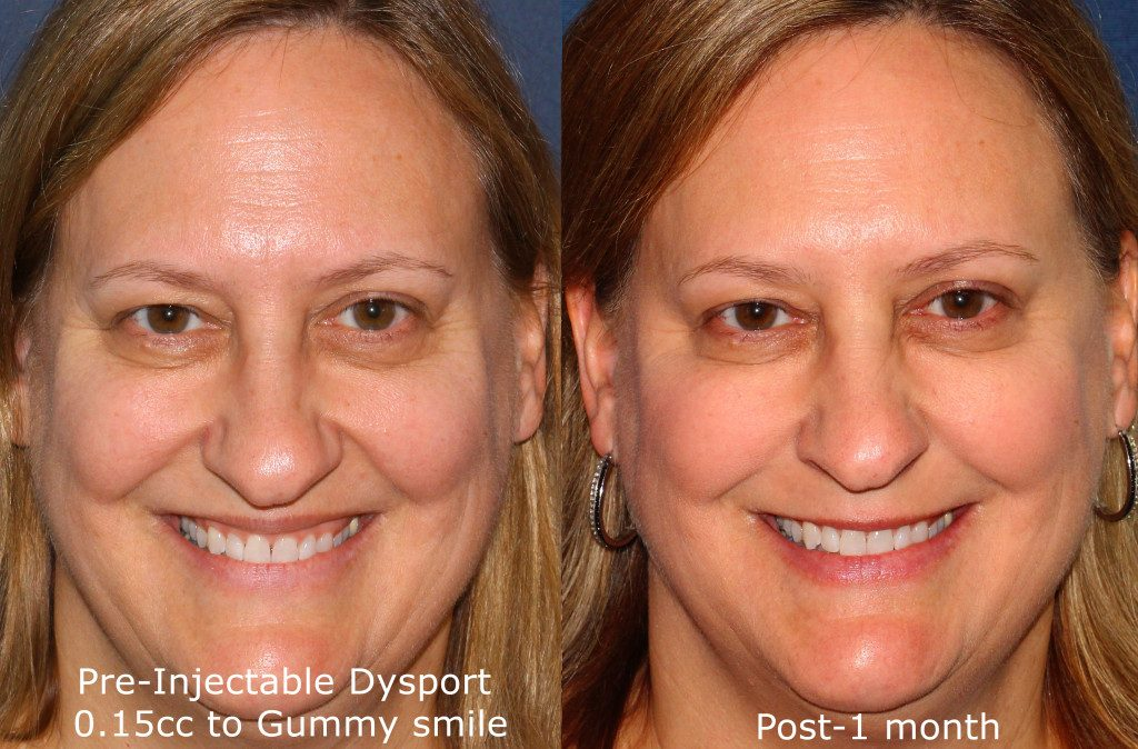 Actual un-retouched patient before and after Dysport injections to reduce a gummy smile by Dr. Fabi. Disclaimer: Results may vary from patient to patient. Results are not guaranteed.