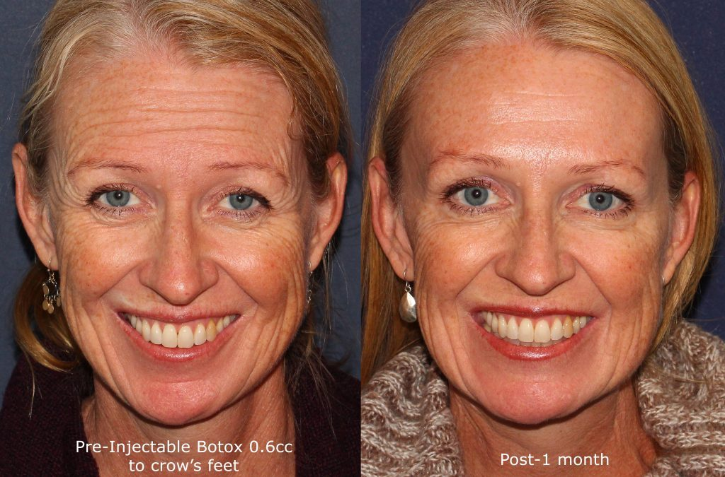 Actual un-retouched patient before and after Botox injections to reduce horizontal forehead lines by Dr. Fabi. Disclaimer: Results may vary from patient to patient. Results are not guaranteed.