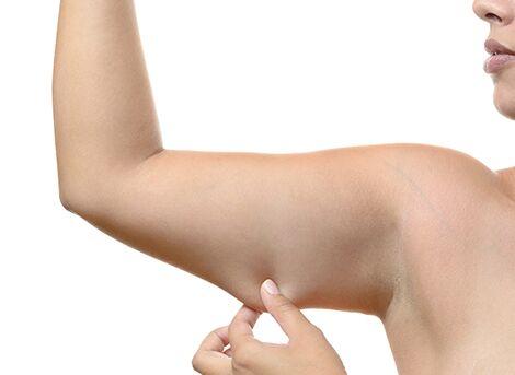 crepey skin treatment san diego