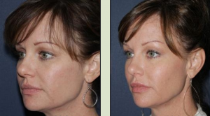 Actual un-retouched patient before and after filler treatment for fine lines by Dr. Goldman. Disclaimer: Results may vary from patient to patient. Results are not guaranteed.