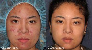 Fraxel Ethnic Skin San Diego