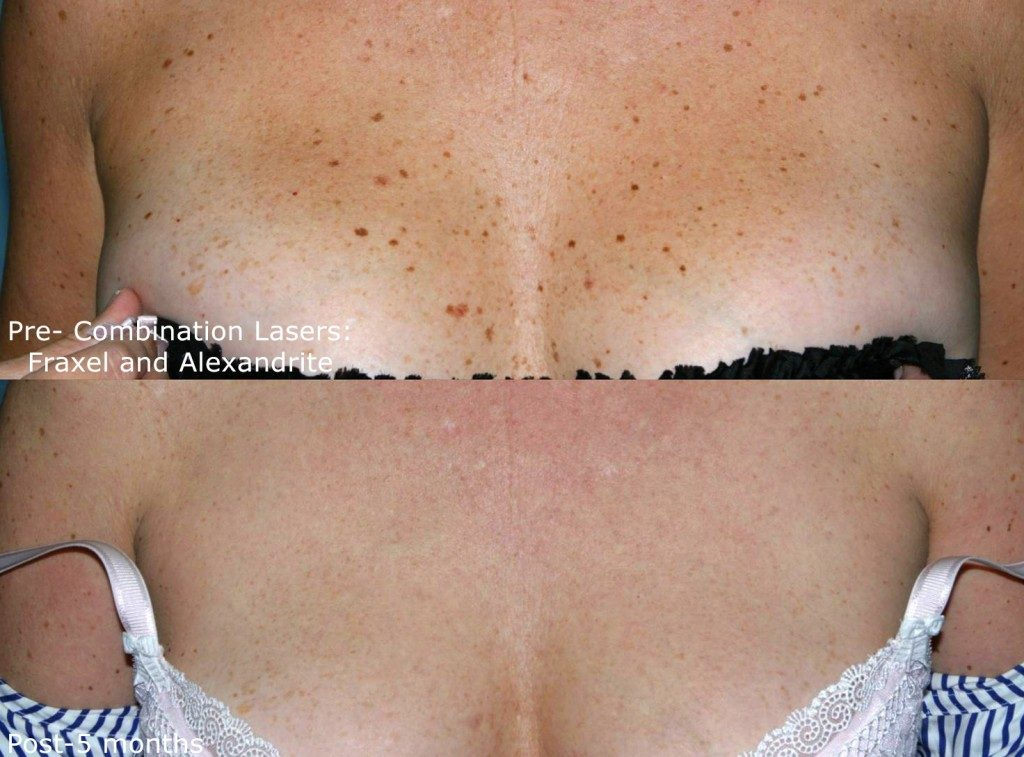 Actual un-retouched patient before and after Fraxel & Alexandrite treatment to address sun damage and brown spots by Dr. Groff. Disclaimer: Results may vary from patient to patient. Results are not guaranteed.