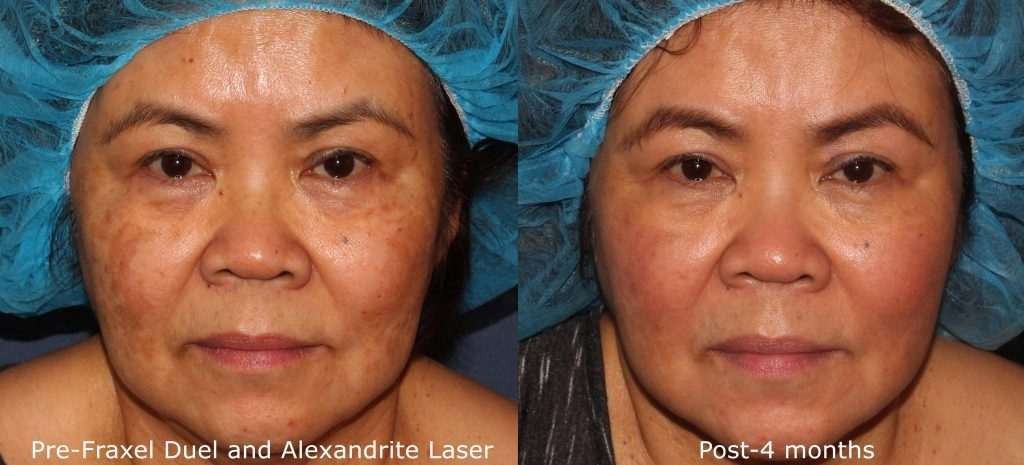 Actual unretouched patient before and 4 months after Fraxel Dual and Alexandrite laser for skin rejuvenation by Dr. Groff. Disclaimer: Results may vary from patient to patient. Results are not guaranteed.