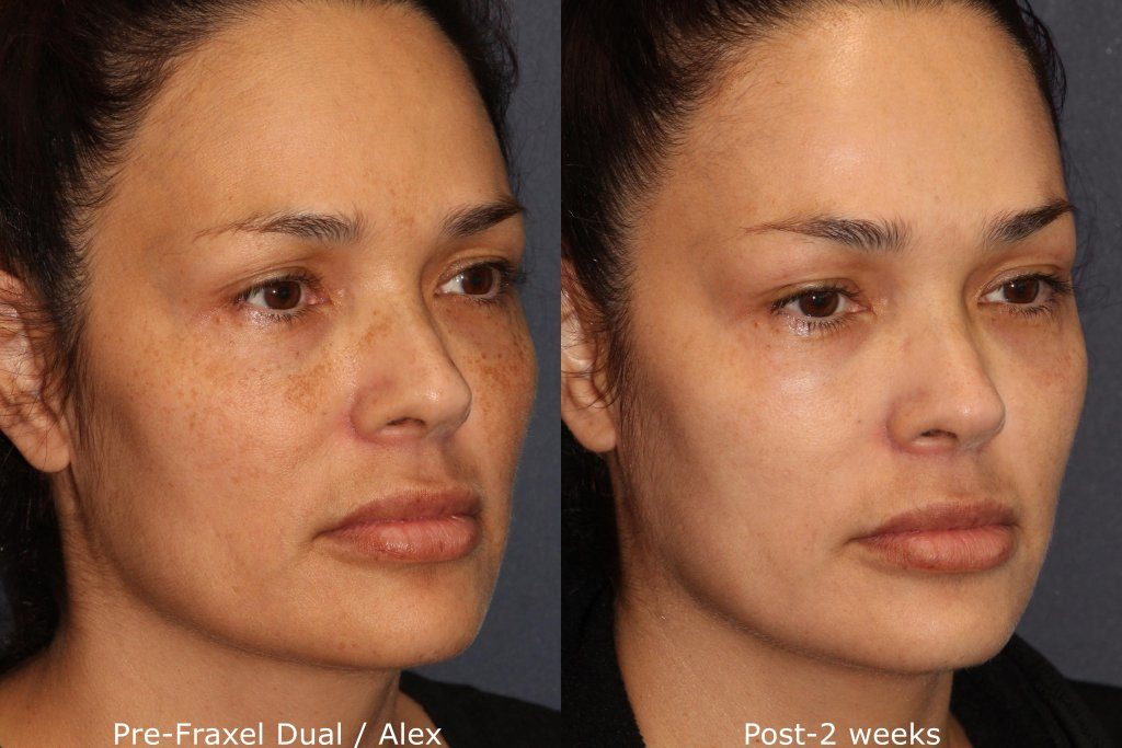 Actual un-retouched patient before and after Fraxel Dual laser to treat pigmentation and sun damage by Dr. Groff. Disclaimer: Results may vary from patient to patient. Results are not guaranteed.