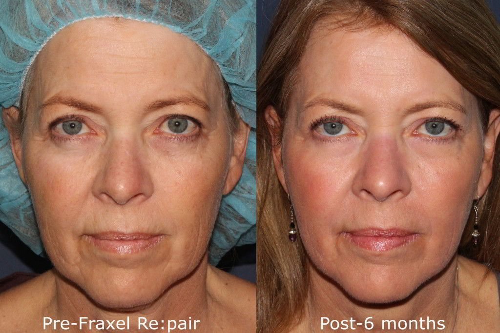 Actual un-retouched patient before and after Fraxel Repair laser treatment for lip lines by Dr. Groff. Disclaimer: Results may vary from patient to patient. Results are not guaranteed.
