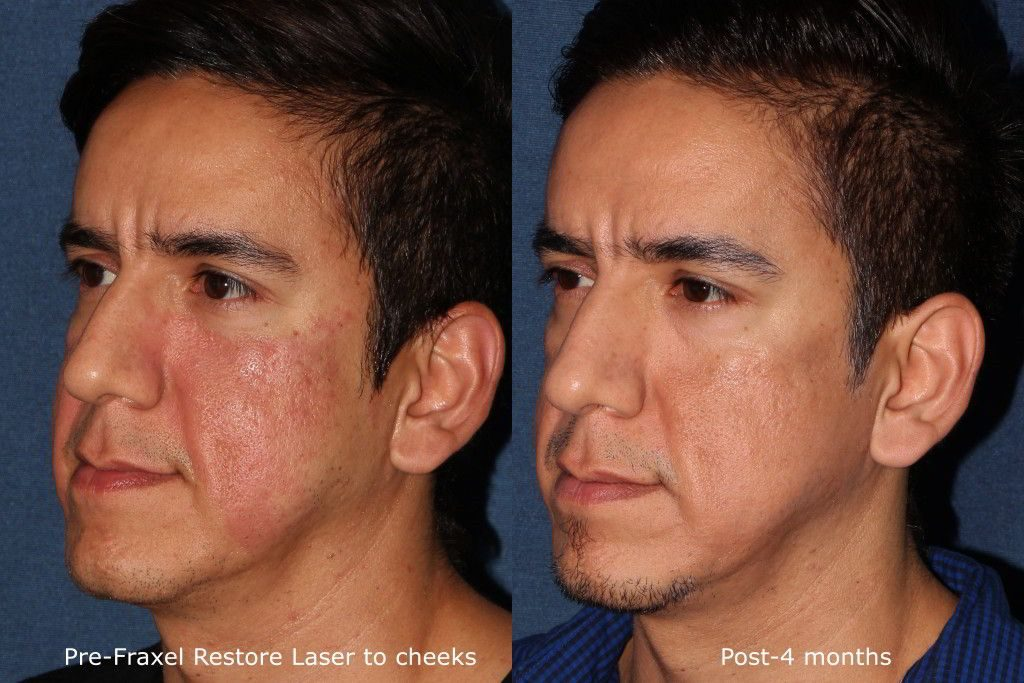 Actual unretouched patient before and after Fraxel Restore to treat cheek redness by Dr. Fabi. Disclaimer: Results may vary from patient to patient. Results are not guaranteed.
