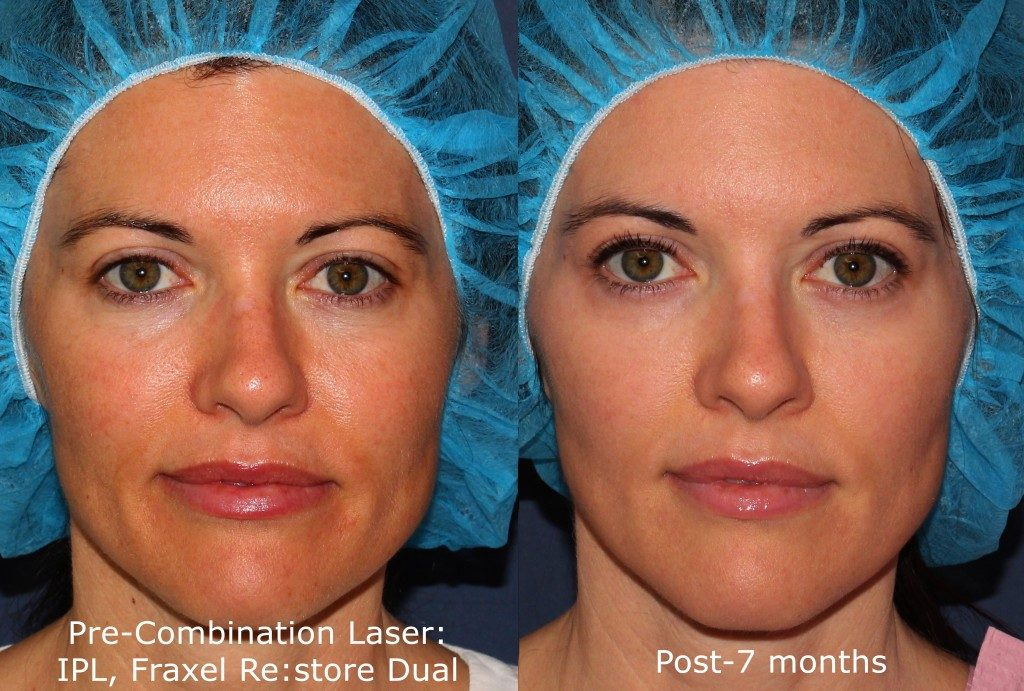 Actual unretouched patient before and after Fraxel Restore and IPL photofacial for skin rejuvenation by Dr. Fabi. Disclaimer: Results may vary from patient to patient. Results are not guaranteed.