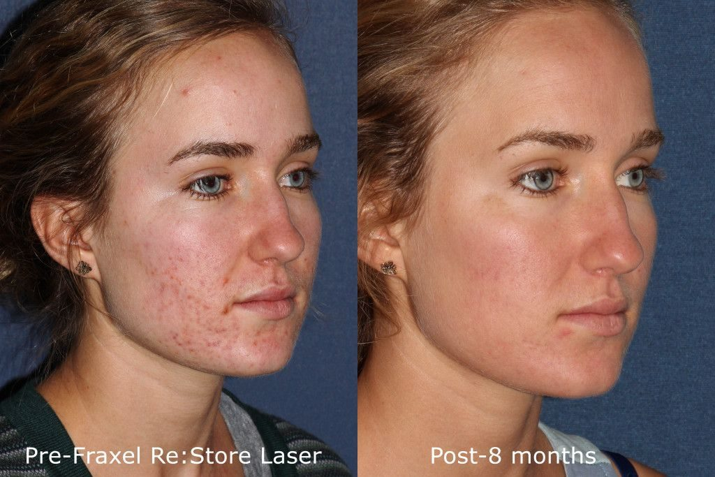 Actual unretouched patient before and after Fraxel Restore to treat acne by Dr. Fabi. Disclaimer: Results may vary from patient to patient. Results are not guaranteed.