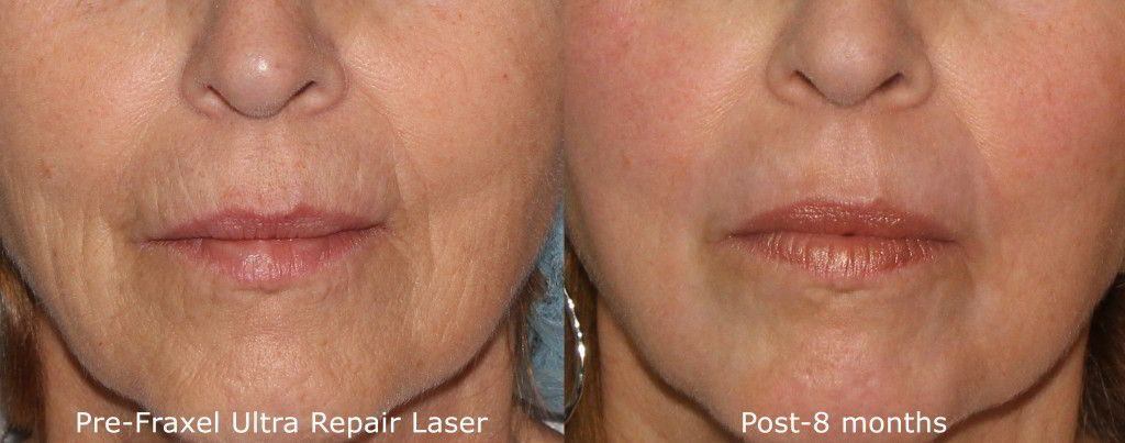 Actual un-retouched patient before and after Fraxel Repair to reduce lip lines by Dr. Fabi. Disclaimer: Results may vary from patient to patient. Results are not guaranteed.