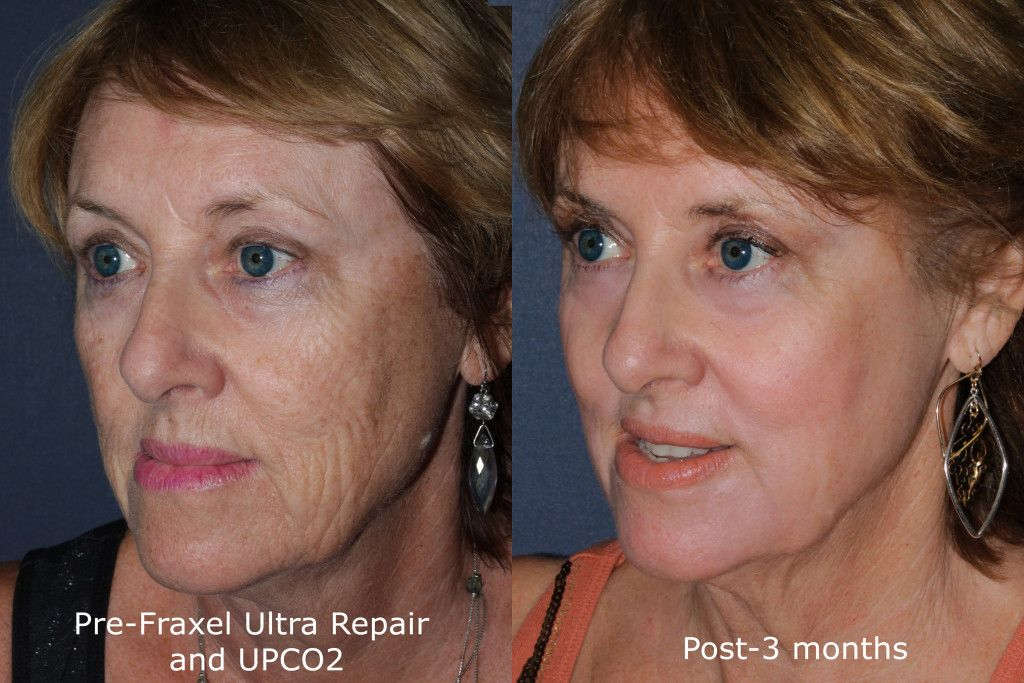 Actual un-retouched patient before and after Fraxel Repair for wrinkle reduction and facial rejuvenation by Dr. Groff. Disclaimer: Results may vary from patient to patient. Results are not guaranteed.
