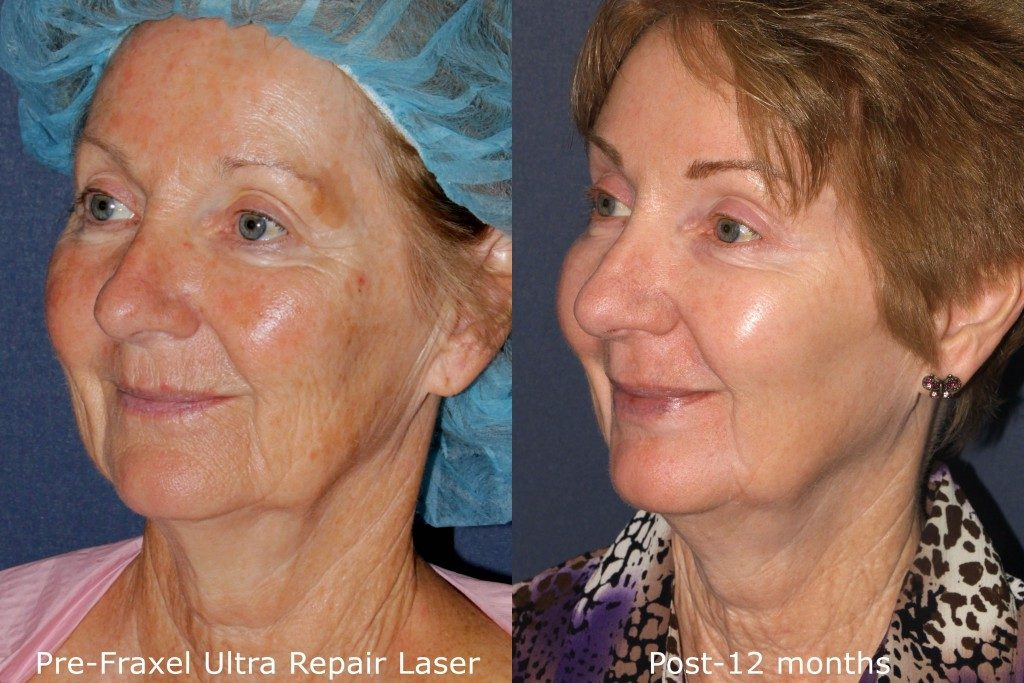 Actual un-retouched patient before and after Fraxel Repair laser treatment for facial rejuvenation by Dr. Groff. Disclaimer: Results may vary from patient to patient. Results are not guaranteed.