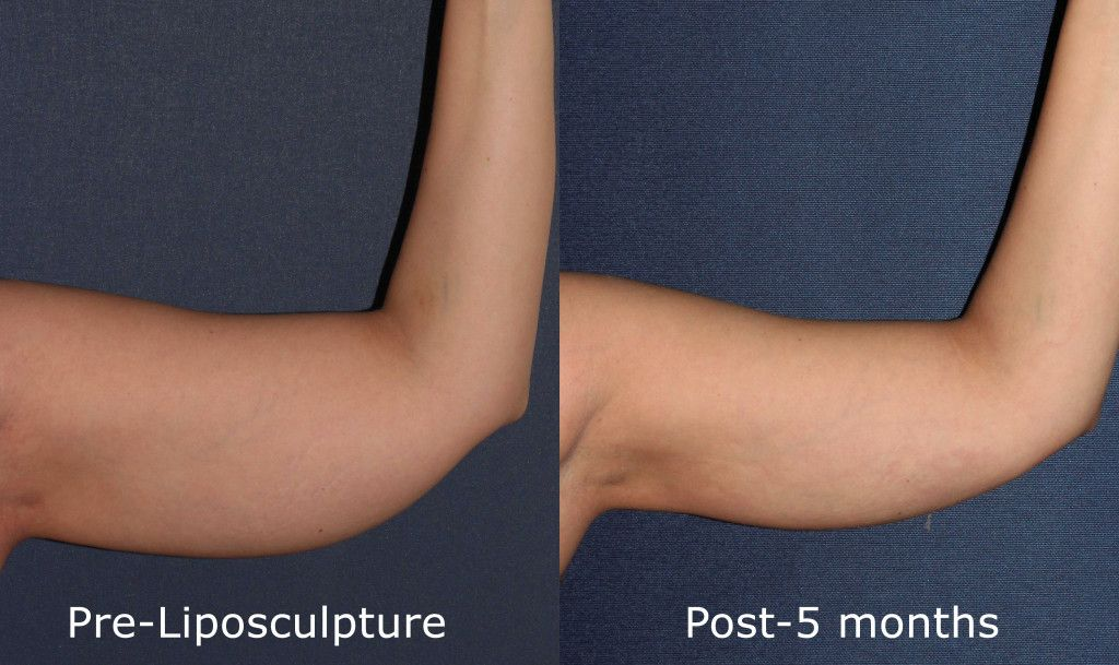 Actual un-retouched patient before and after liposculpture to contour the upper arms by Dr. Goldman. Disclaimer: Results may vary from patient to patient. Results are not guaranteed.