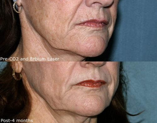 Before and after oblique image of CO2 and erbium laser treatment on a female's lip wrinkles performed by Dr. Groff at our San Diego medical spa
