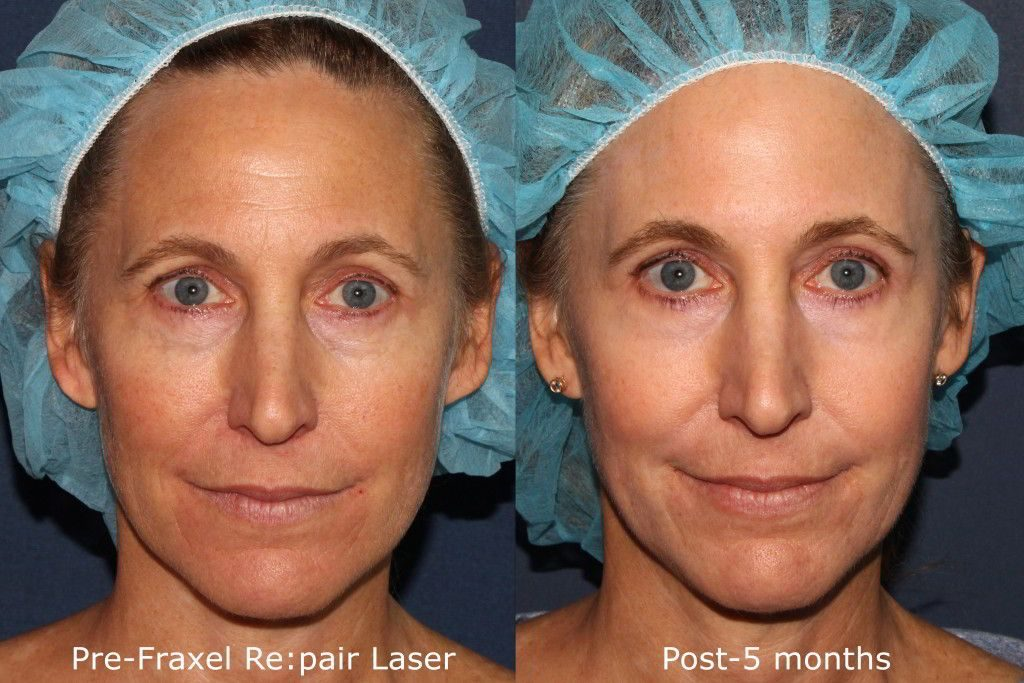 Actual un-retouched patient before and after Fraxel Repair treatment for fine lines and wrinkles by Dr. Groff. Disclaimer: Results may vary from patient to patient. Results are not guaranteed.