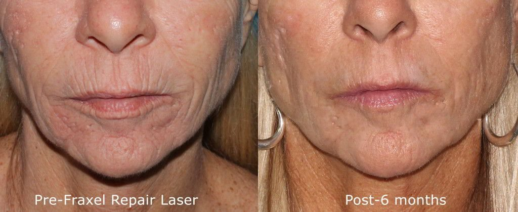 Actual un-retouched patient before and after Fraxel Repair laser to reduce lip lines and rejuvenate the skin by Dr. Groff. Disclaimer: Results may vary from patient to patient. Results are not guaranteed.