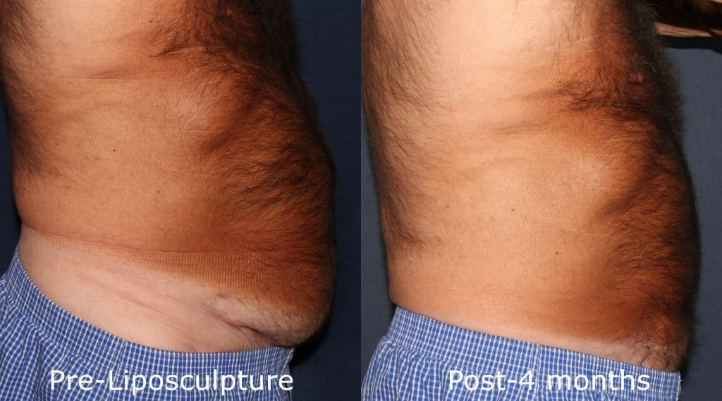 Actual un-retouched patient before and after liposuction to reduce and contour the abdomen by Dr. Groff. Disclaimer: Results may vary from patient to patient. Results are not guaranteed.