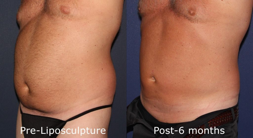 Actual un-retouched patient before and after liposuction to reduce abdominal fat by Dr. Groff. Disclaimer: Results may vary from patient to patient. Results are not guaranteed.