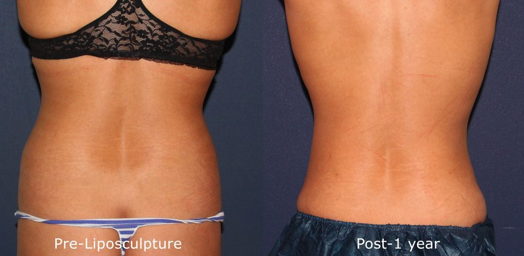 Actual un-retouched patient before and after liposuction treatment for abdomen and love handles by Dr. Groff. Disclaimer: Results may vary from patient to patient. Results are not guaranteed.