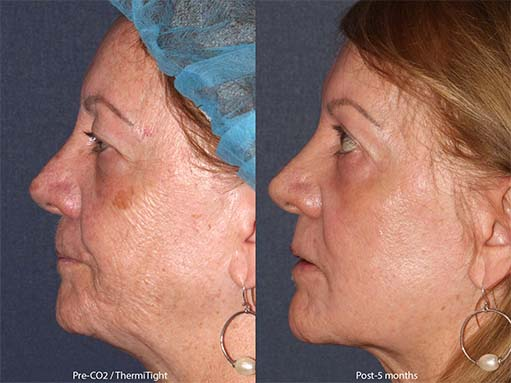 Actual unretouched patient before and after ThermiTight for skin laxity by Dr. Groff. Disclaimer: Results may vary from patient to patient. Results are not guaranteed.