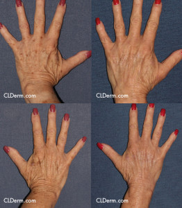Unretouched photos of patient before and after laser treatment for hand rejuvenation by Dr. Fabi. Disclaimer: Results may vary from patient to patient. Results are not guaranteed.