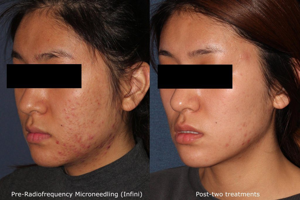 Actual un-retouched patient before and after RF microneedling treatment for acne by Dr. Wu. Disclaimer: Results may vary from patient to patient. Results are not guaranteed.