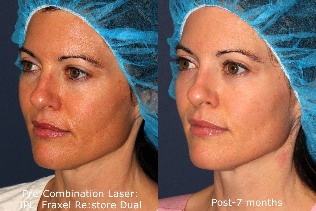 Actual un-retouched patient before and after Fraxel Dual and IPL photofacial for facial rejuvenation by Dr. Fabi. Disclaimer: Results may vary from patient to patient. Results are not guaranteed.