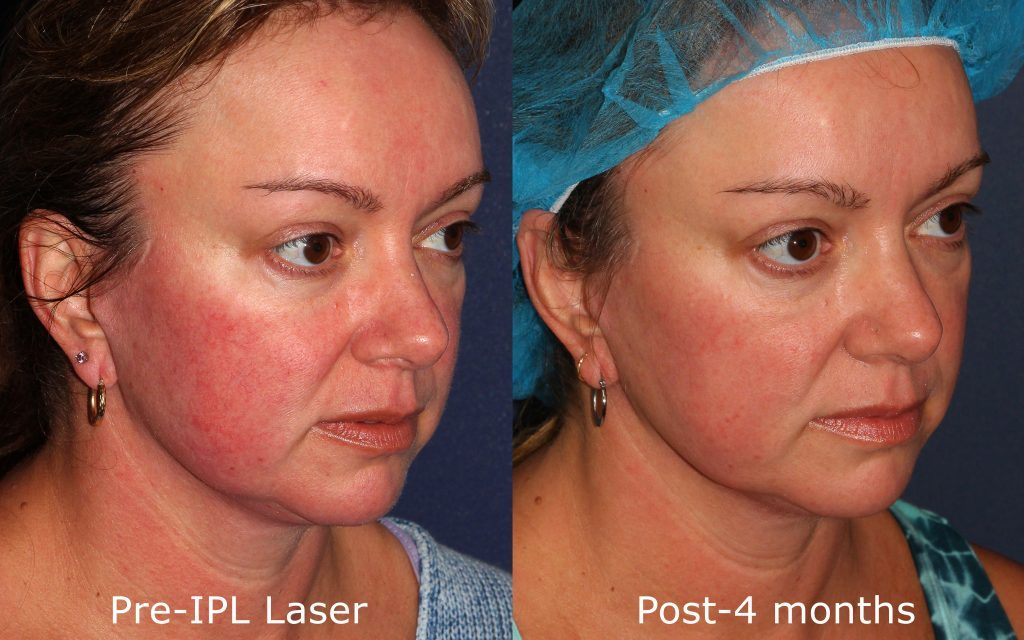 Actual un-retouched patient before and after IPL photofacial for facial redness by Dr. Fabi. Disclaimer: Results may vary from patient to patient. Results are not guaranteed.