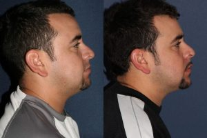 Before and after side image of Kybella treatment on a male's chin and neck performed by Dr. Fabi at our San Diego medical spa