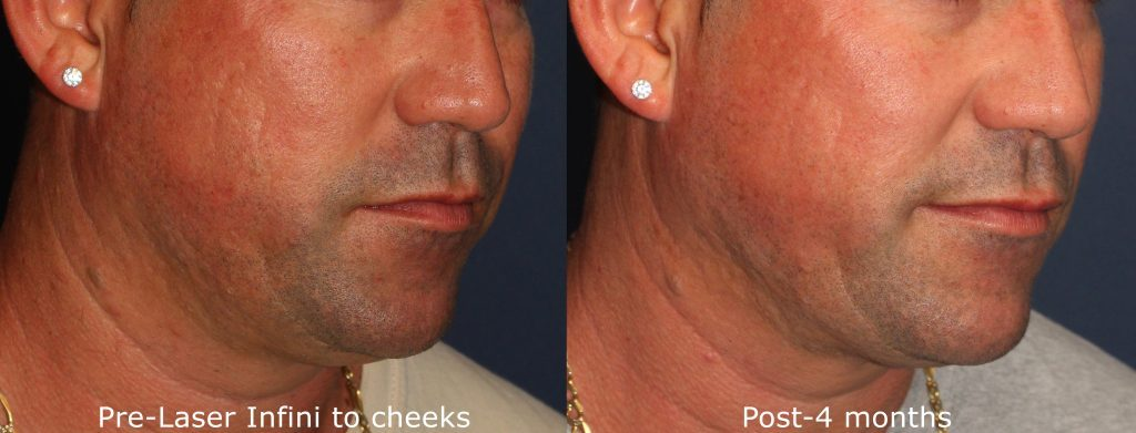 Actual un-retouched patient before and after RF microneedling treatment for acne scars by Dr. Wu. Disclaimer: Results may vary from patient to patient. Results are not guaranteed.
