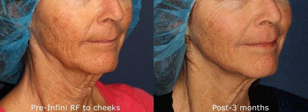 Actual un-retouched patient before and after RF microneedling treatment for sagging facial skin by Dr. Wu. Disclaimer: Results may vary from patient to patient. Results are not guaranteed.